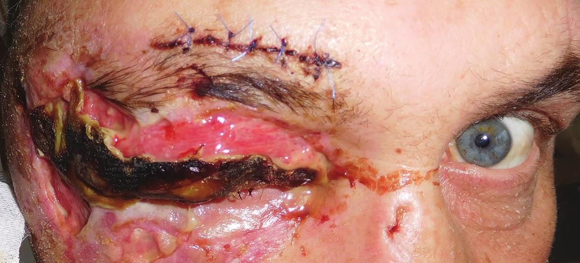 Pacient po úraze hlavy a tváre po primárnom ošetrení a suture v oblasti supercília s rozsiahlym defektom kože v oblasti mihalníc pravého oka
