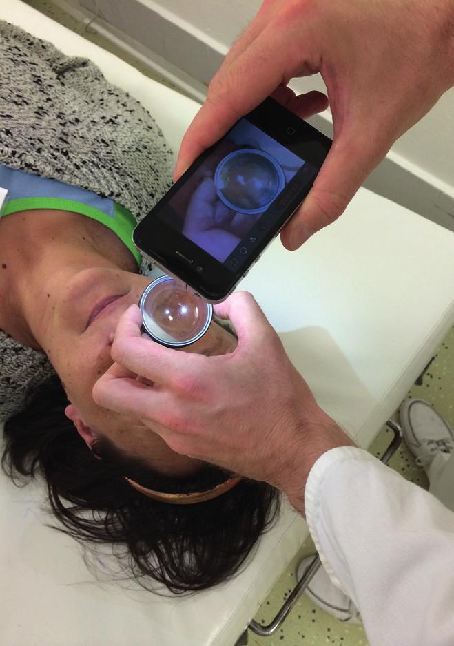Vyšetřovací technika pořízení snímku očního pozadí pomocí mobilního telefonu a 20D sférické čočky.
