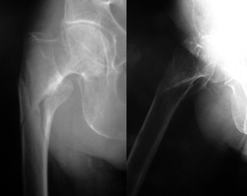 Obr. 2a: Subtrochanterická zlomenina