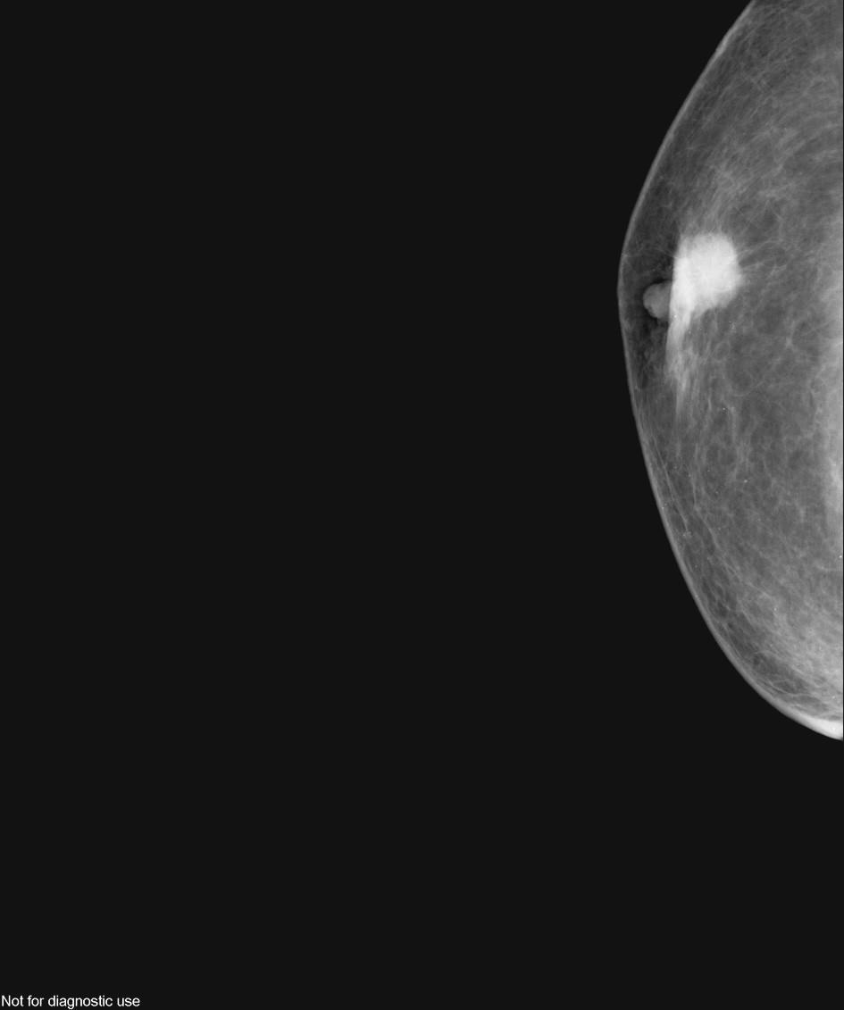 Obr. 4, 5. Mamografický obraz MBC – ložisko s neostrým, naznačeně s cirhotickým okrajem, uložené těsně submammilárně, vtahující zesílenou mammilu Fig. 4, 5. Mammographic view of MBC – A focus with unclear, scirrhotic margin, in the submammilary location, pulling in the thickened mammila
