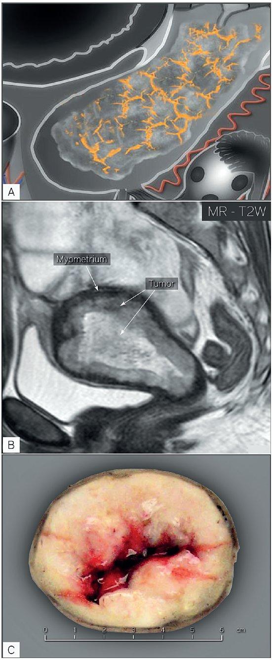 Velký endometriální karcinom infiltrativně rostoucí do myometria a stromatu děložního hrdla (FIGO stadium II)