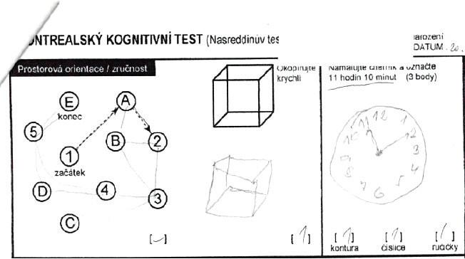 Část MOCA testu s testem hodin