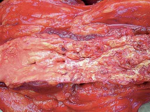 Makroskopický obraz ateroskleroticky zmenenej cievy.