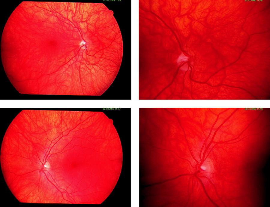 Retinogram pacientky č. 1 (horný rad – pravé oko, dolný rad – ľavé oko)