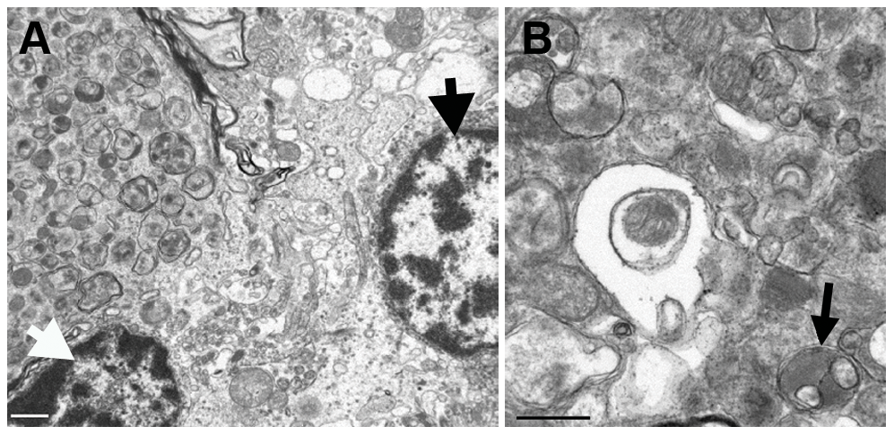Transmission electron micrographs of the cerebellum of an affected Gordon Setter.