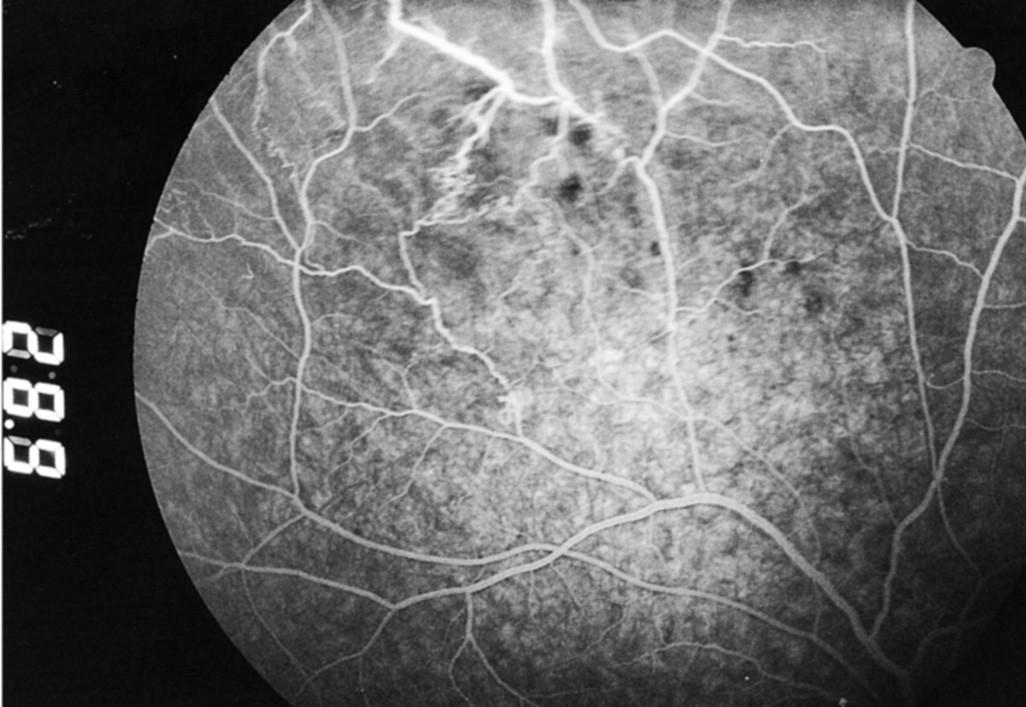 Fluoresceínová angiografia z 19. 4. 2004: regresia očného nálezu bez rozvoja neovaskularizácií, s miernym presakovaním farbiva z postihnutých ciev do okolitej sietnice