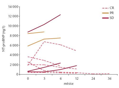 Změny sérových hladin NT-proBNP v závislosti na míře hematologické léčebné odpovědi v souboru nemocných s AL-amyloidózou (n = 10). CR – kompletní remise, PR – parciální remise, SD – stabilní onemocnění
