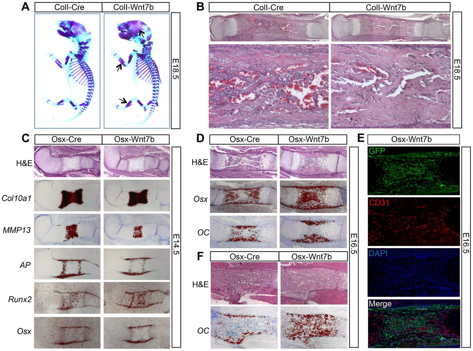 WNT7B stimulates bone acquisition in the embryo.