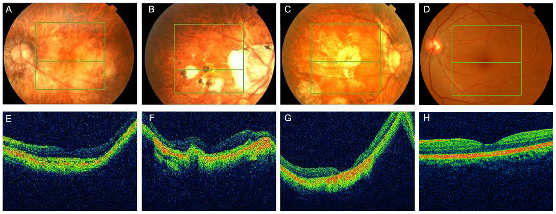 Fundus photographs and optical coherence tomography (OCT) of high myopia patients from the sporadic cases.