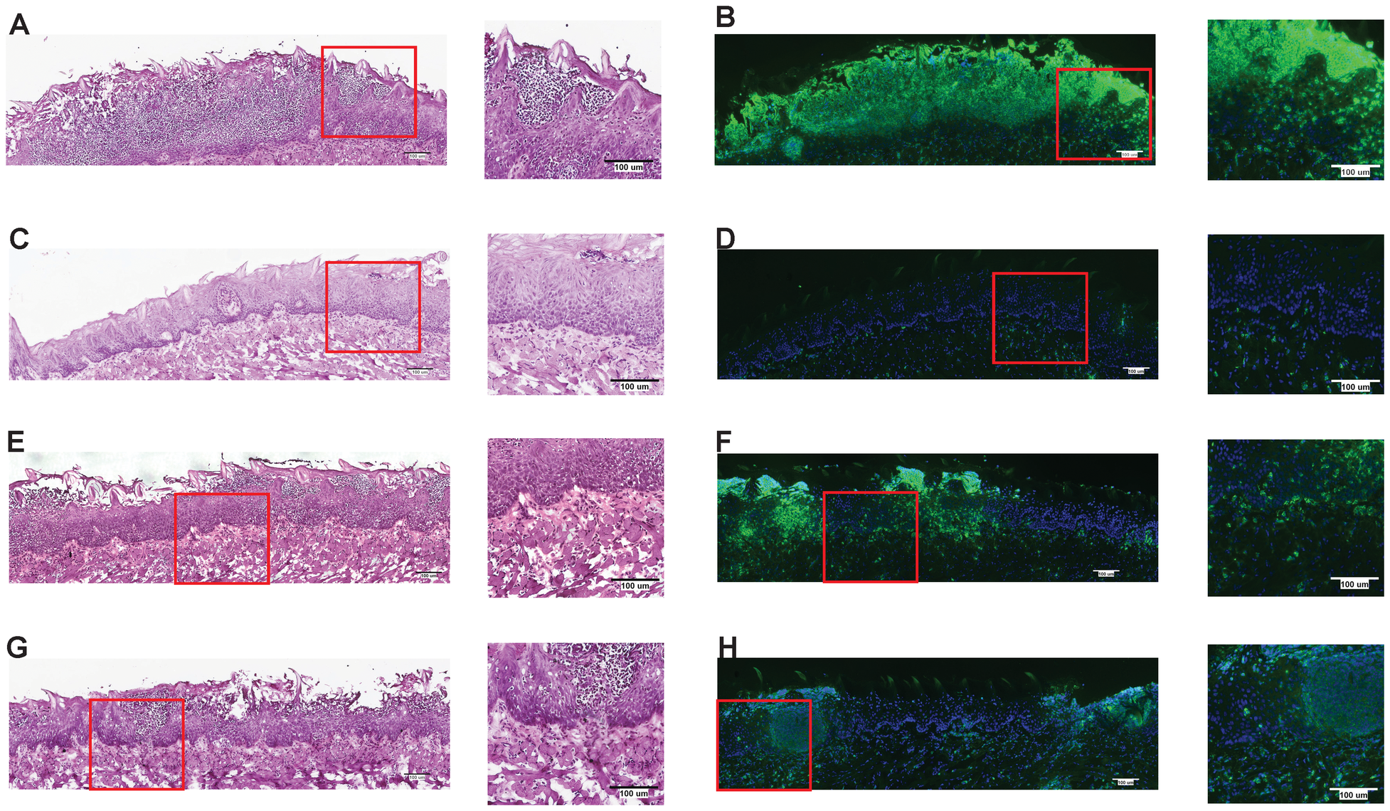 NLRC4 inflammasome mediates neutrophil influx response to mucosal <i>Candida</i> infection.
