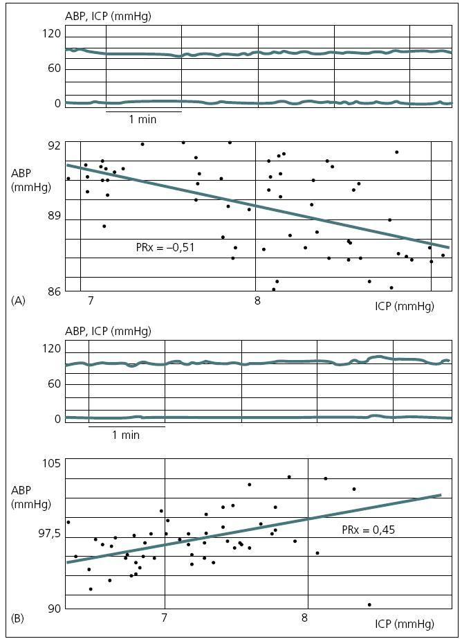 Vztah mezi pomalými vlnami ICP a MAP.