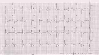 EKG u nemocné s těžkou plicní arteriální hypertenzí: P pulmonale. R/S ve V1 > 1, inkompletní blokáda pravého raménka Tawarova, naznačené deprese ST a negativní T ve svodech II, III, aVF, V1-6.
