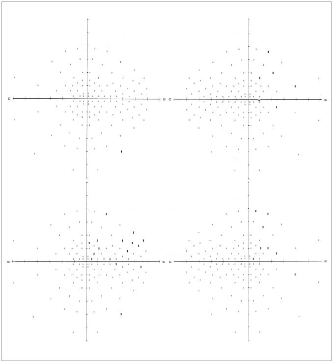 Srovnání předoperačního a pooperačního vyšetření perimetrem u pacienta č. 2: černý obdélník – výpad; kroužek – normální nález; horní řada: předoperační stav (OL vlevo, OP vpravo), dolní řada: pooperační stav 9. den po operaci (OL vlevo, OP vpravo).