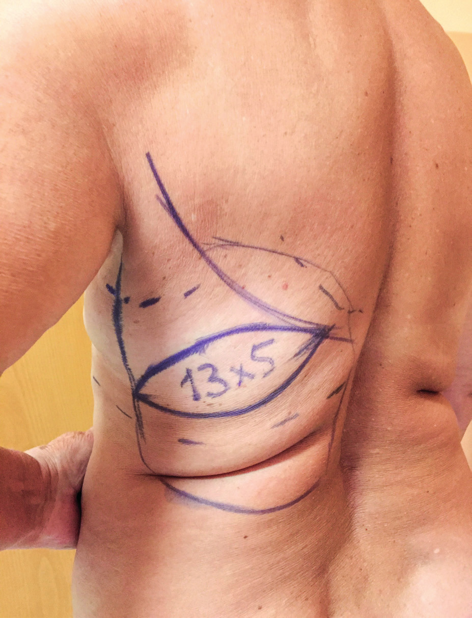 Latissimus dorsi flap planning. The bra strap area is marked first when the patient is wearing her bra. The horizontal or slightly transverse skin paddle is localized in the middle of the bra strap area