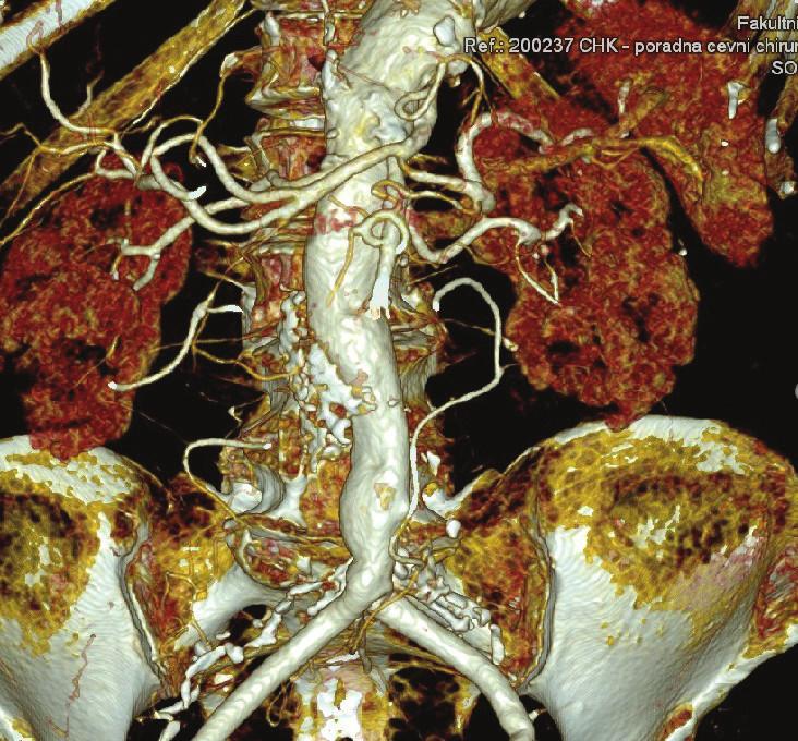 CTA kontrola 1,5 roku po výkonu Fig. 10: Follow-up CTA 1.5 years after surgery