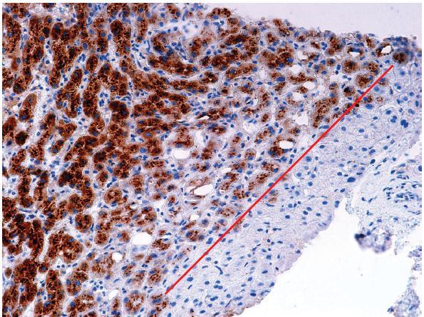Imunohistochemický průkaz (SAA) s cytoplazmatickou pozitivitou v buňkách I-HCA, s ostrou hranicí negativního průkazu (červeně) v okrsku nenádorové tkáně v okraji vzorku (SAA, objektiv 20x).