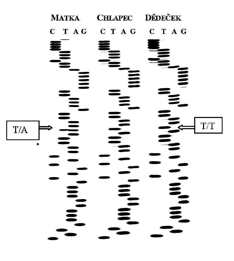 Sekvenční analýza části 1. intronu u 3 členů rodiny pacienta s PLS.