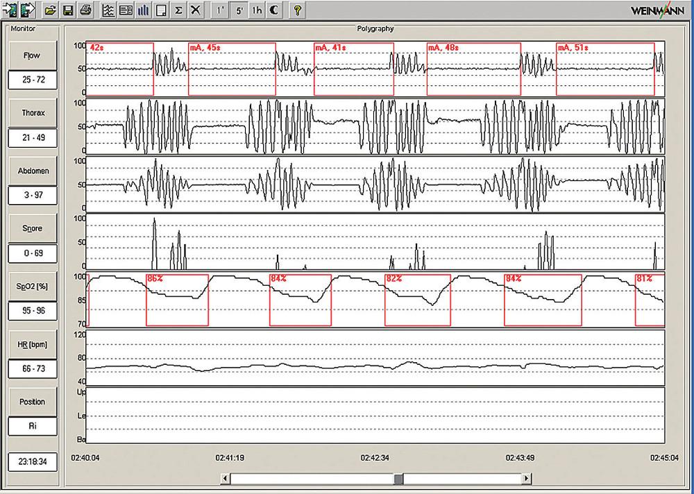 Ukázka 5minutové polygrafie s typickými smíšenými apnoemi. Pacient 45letý muž, BMI 28,8; AHI 50.
