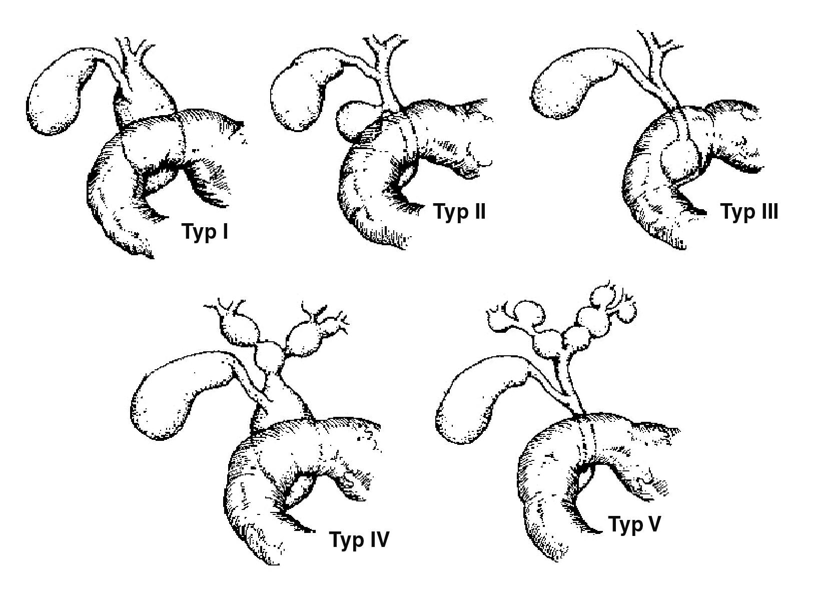 Klasifikace cyst choledochu. Typ I – cystická dilatace zevních žlučových cest, bez dilatace žlučníku, typ II – divertikl žlučovodu, typ III – choledochokéla, typ IV – mnohočetné cysty extra- a intrahepatálních žlučových cest, typ V – cystická dilatace intrahepatických žlučových cest (jednoho nebo obou laloků).