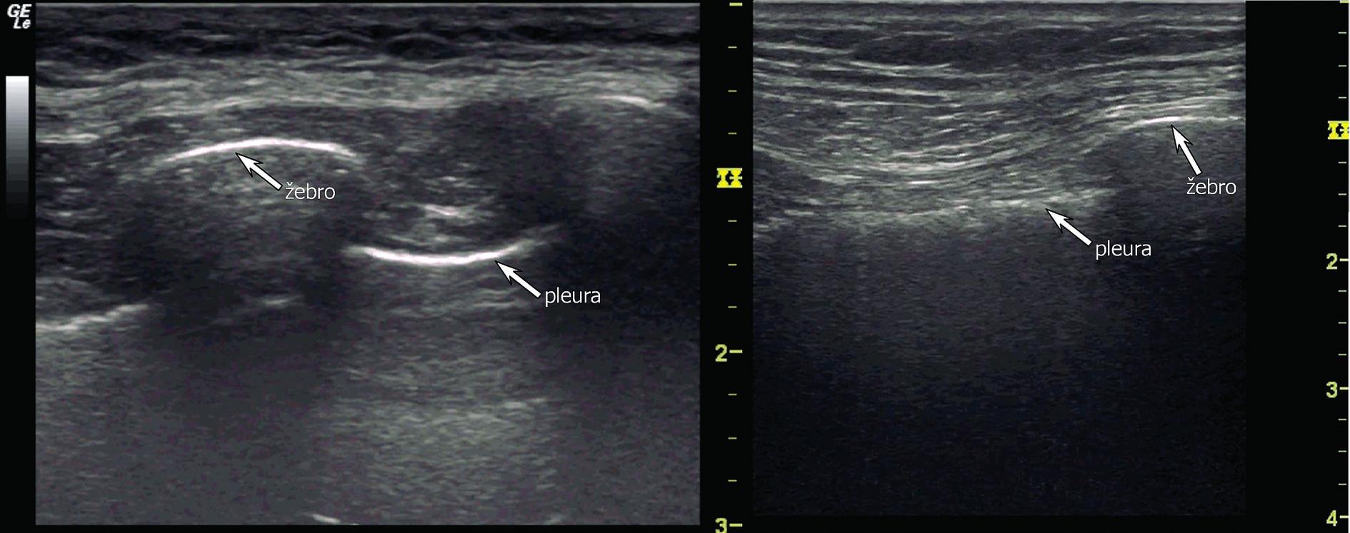 Fyziologické UZ zobrazení pleurální linie a žeber konvexní sondou (vlevo) a lineární sondou (vpravo)
