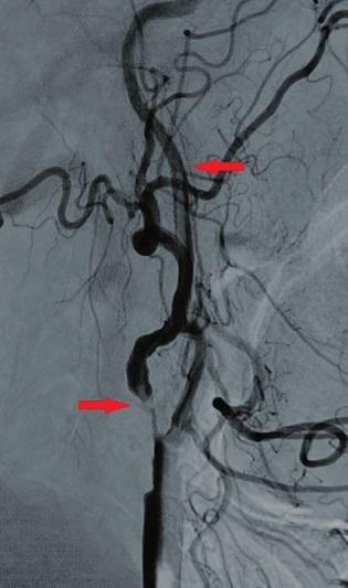Angiografické zobrazení stenozy a volně vlajícího trombu Fig. 4: Angiography presenting the stenosis and the free-floating thrombus