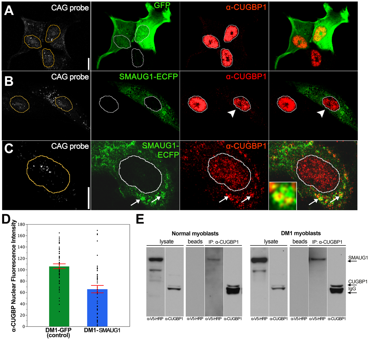 SMAUG1 and CUGBP1 co-localize and physically interact in DM1 myoblasts.