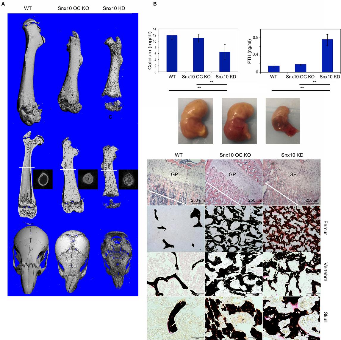 Histology and Micro CT analysis of Snx10 OC KO mice.
