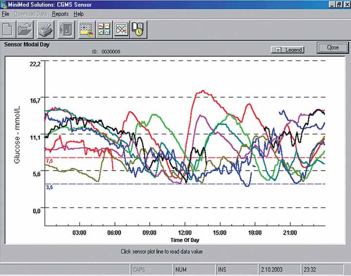 Záznam kontinuální monitorace glykemie.