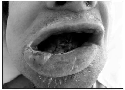 Sarkom jazyka (detailní pohled na rty a ústní dutinu)