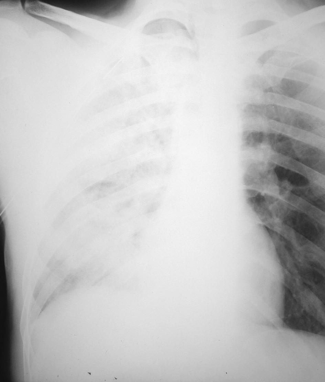 RTG hrudníka 3 hod. po drenáži hrudníkovej dutiny, zobrazujúca difúzne zatienenie celého pravého pľúcneho krídla s početnými splývajúcimi infiltrátmi vpravo a zvýraznenou bronchiálnou kresbou vľavo, s pretrvávajúcim plášťovým PNO vpravo Fig. 2. Thoracic x-ray 3 hours following drainage of the thoracic cavity, depicting diffuse density over the whole right lung with multiple coalescing infiltrations on the right and marked bronchial outline on the left, with persisting pneumothorax on the right