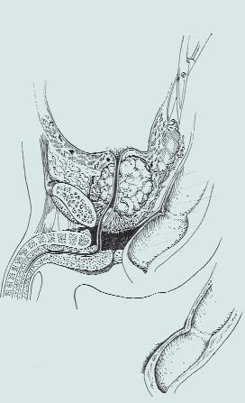 Stav před radikální cystektomií s Millinovou prostatektomií [31].