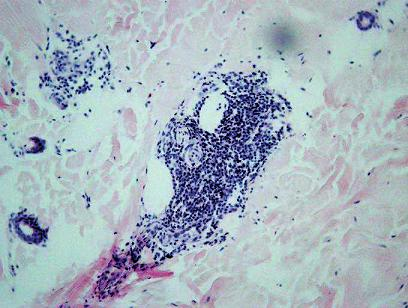 Zápalový infiltrát v hĺbke retikulárnej dermy a okolo kožných adnexov, ciev a nervov. HE, 100x.