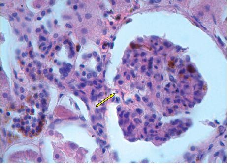Ledvinný glomerulus s hnědými depozity hemosiderinu, hematoxylin-eosin