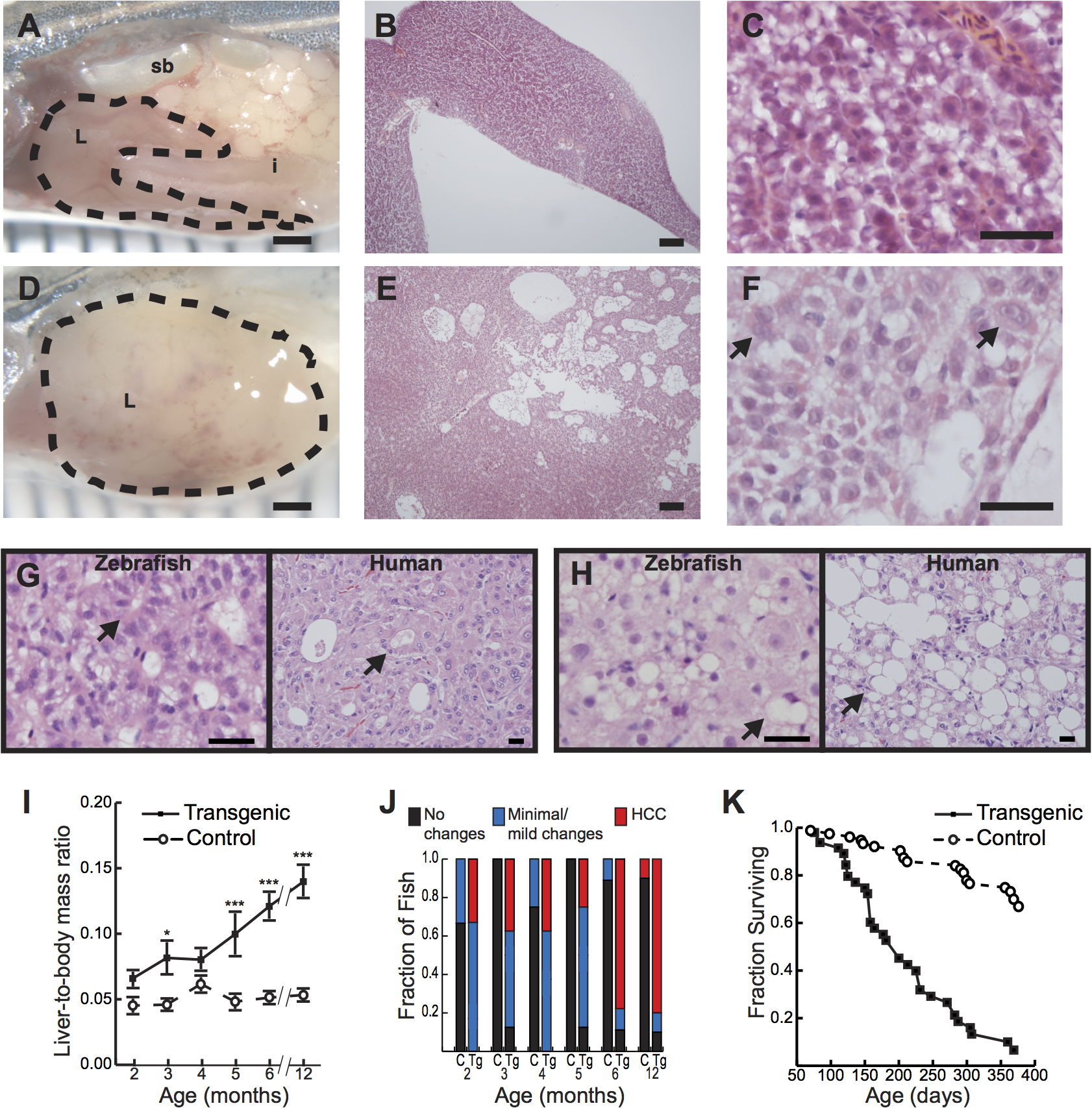 Hepatocyte-specific expression of activated β-catenin results in liver enlargement, hepatocellular carcinoma (HCC), and decreased survival in adult zebrafish.