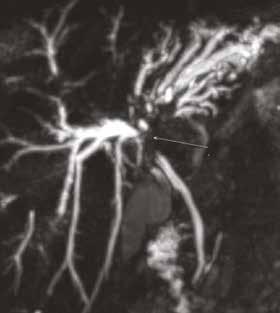 Pacient (1960): patrný štíhlý ductus choledochus.