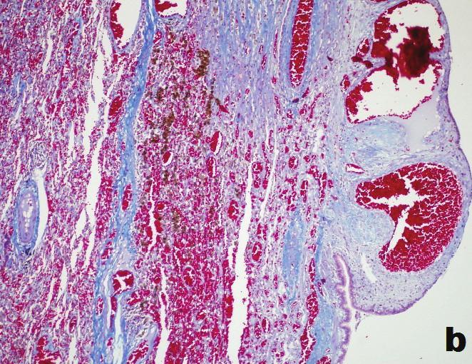 b) Časť steny s čerstvými extravazátmi, siderofágickou reakciou, dilatovanými povrchovými tenkostennými cievami a úzkym pásom fibrózy (Massonov trichróm; obj. 10x) b) Part of the wall with fresh extravasation, reaction of siderophages, dilated superficial thin-walled vessels and narrow strip of fibrosis (Masson trichrome; obj. 10x)
