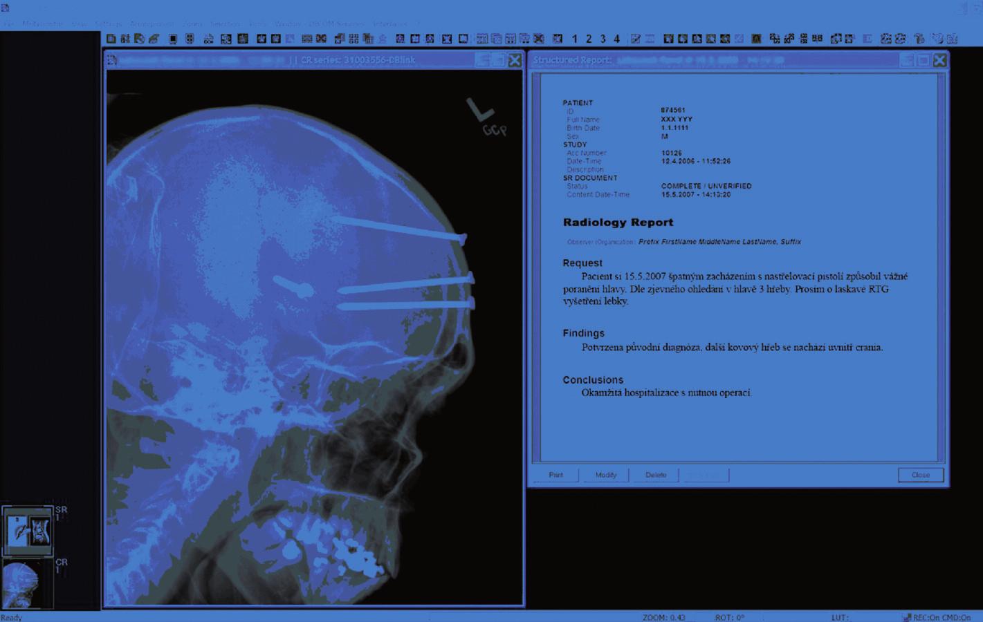 Pomocí systému ePACS je možné zasílat i textové informace související se snímkem. Foto: archiv ICZ