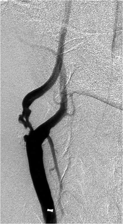 DSA pravé ACC s ulcerovanou stenózou odstupu ACI – před implantací stentu