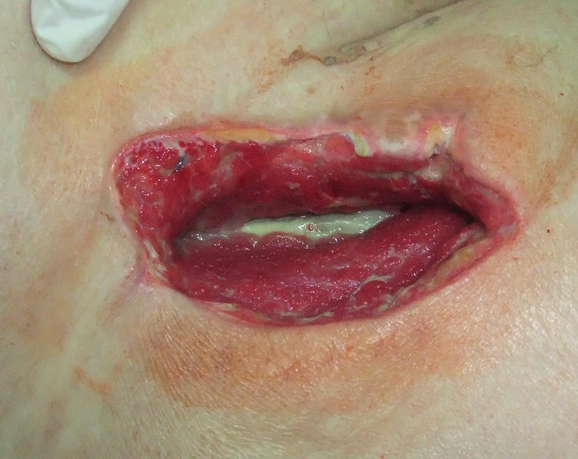Pacientka, ročník 1949, BMI 25,7, po implantaci distálního femoro-popliteálního bypassu cévní protézou vpravo, časná infekce v třísle Szilagyi III, protéza na spodině rány, kultivačně Escherichia coli hemolytická. Situace v den zahájení podtlakové terapie. Fig. 1: Female patient (born, 1949; BMI, 25.7) after implantation of a distal femoro-popliteal prosthetic bypass on the right, early Szilagyi III infection in the groin; prosthesis exposed at the base of the wound; Escherichia coli isolated. The day of beginning the negative pressure wound therapy.