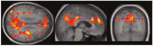 """Oblasti zapojené do DMS identifikované pomocí """"seed"""" analýzy jsou rovněž zadní cingulum/precuneus, ventromediální prefrontální kortex/přední cingulum a gyrus angularis/lobulus parietalis inferior bilaterálně. Vporovnání se zobrazením deaktivací je tato mapa rozsáhlejší a lépe koreluje s výsledky ICA analýzy. Zobrazeno při p < 0,0001 nekorigovaně."""