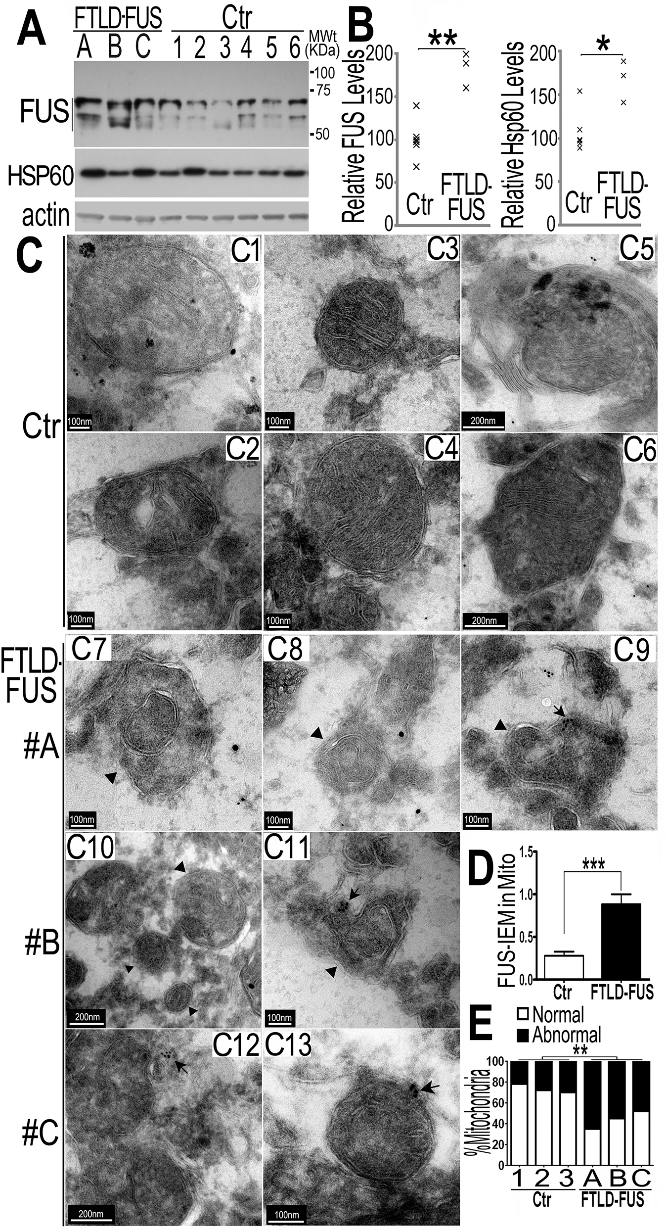 Increased FUS protein levels and mitochondrial damage detected in 3 independent FTLD-FUS brain samples.
