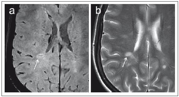 Porovnání sekvence SWI (susceptibility-weighted imaging) (a) a konvenčního T2 váženého obrazu (b) v axiální rovině u pacientky s roztroušenou sklerózou. Fig. 3. Comparison of the SWI (susceptibility-weighted imaging) (a) sequence and a conventional T2-weighted image (b) in the axial plane in a patient with multiple sclerosis.