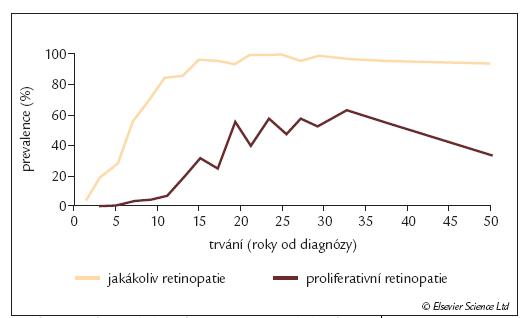 Prevalence diabetické retinopatie u diabetiků [2].