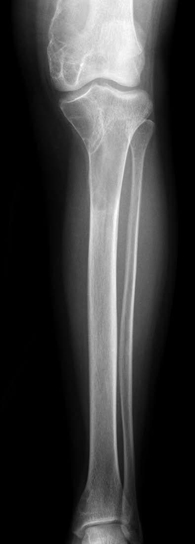 Patologická fraktúra pravej dolnej končatiny – rozsiahle cystické zmeny distálneho femuru a proximálnej tíbie. Fig. 1. Pathologic fracture of the right lower extremity – vast cystic changes of distal femur and proximal tibia.