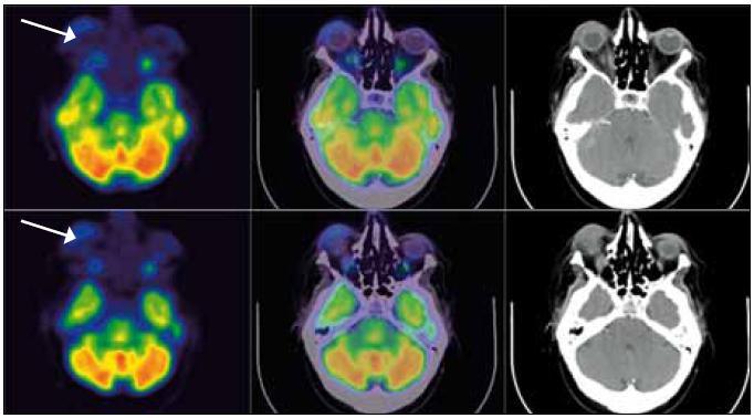 Obr. 6, 7. PET-CT mozku: transverzální (neboli axiální) řezy PET (v barevné škála Spectrum), PET-CT a CT. Patrná je infiltrovaná oblast pravého očního víčka (šíře víčka asi 10 mm) s relativně vysokou akumulací FDG (SUV<sub>max</sub> 4,87 viz bílá šipka). Méně nápadně i vlevo.