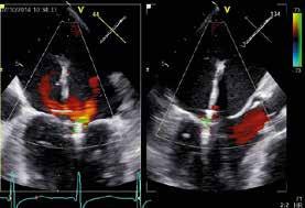 TEE stav po implantaci druhého MitraClipu s reziduální stopovou mitrální regurgitací (1. stupeň ze 4); proti stavu před výkonem je zmenšení mitrální regurgitace o 3 stupně.