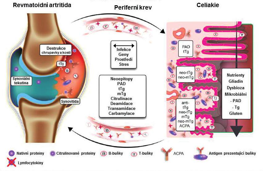 Patogenní dráhy na ose revmatoidní artritida – celiakie. Upraveno podle A. Lernara a T. Mathiase (12).