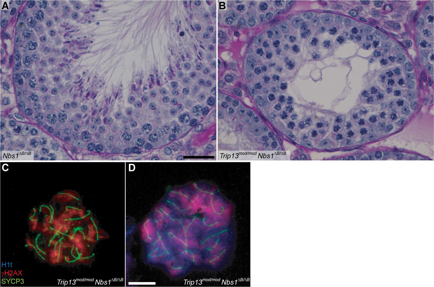 <i>Trip13</i><sup><i>mod/mod</i></sup> <i>Nbs1</i><sup><i>ΔB/ΔB</i></sup> spermatocytes arrest in mid/late pachynema with unrepaired DSBs at epithelial stage IV.