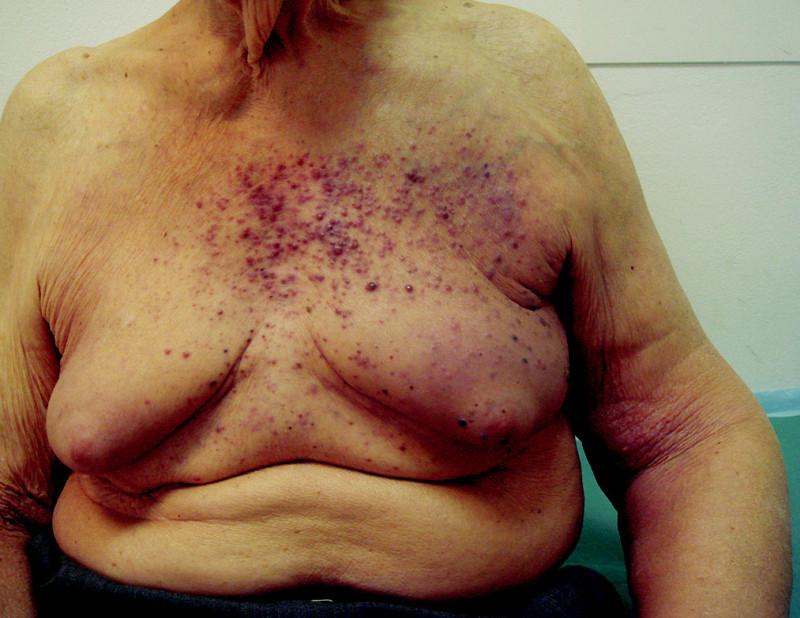 Hematogenní rozsev kožních a podkožních metastáz melanomu bez orgánového postižení