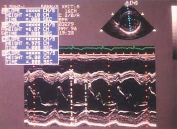 Záznam M-modu v sekci parasternální krátké osy levé komory u případu těžké aortální regurgitace. Komora je zvětšená a kontrakce hyperdynamická s frakčním zkrácením 45 %.